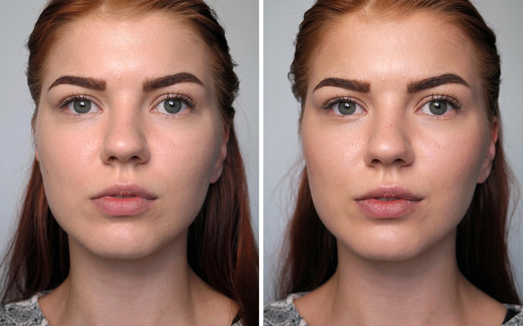 aurinkopuuteri kasvojen muotoilu